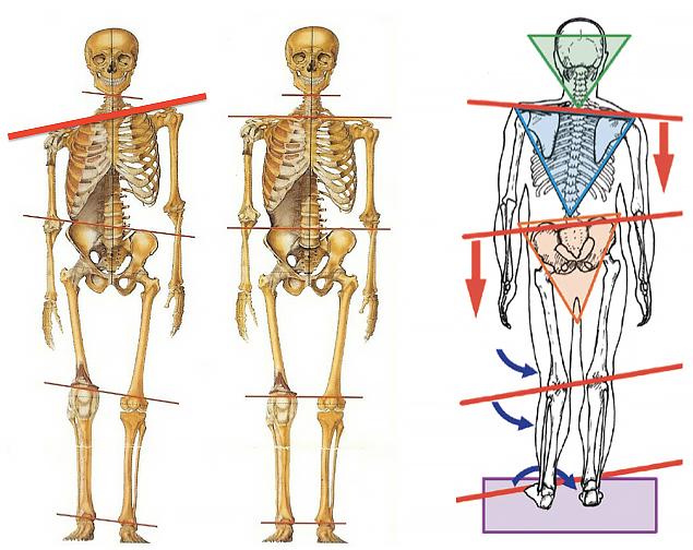 「骨格の歪み」の画像検索結果